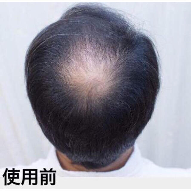 分け目 薄毛 【つむじ】【分け目】【薄毛】が気になっていませんか?