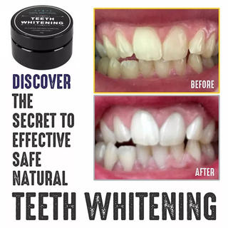 活性炭パウダー 歯のホワイトニング