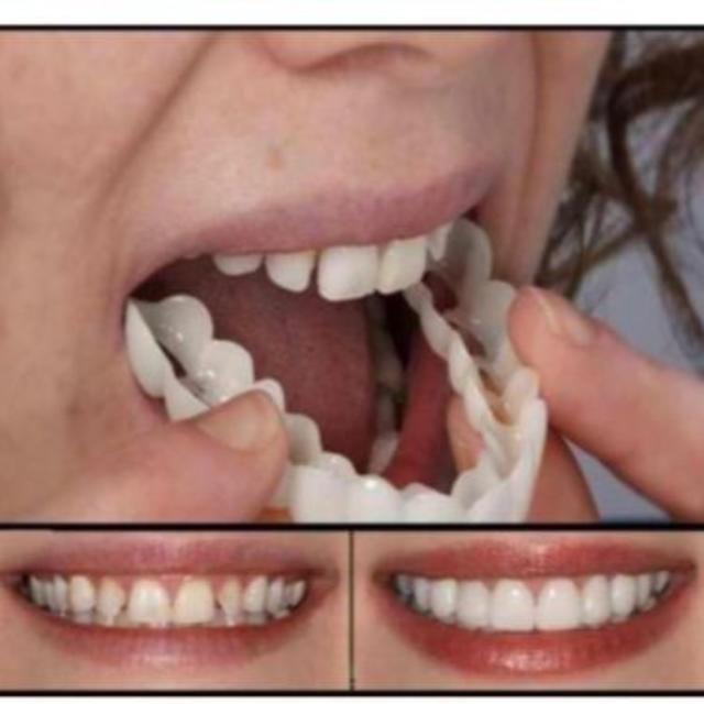 歯のカバー スナップオンスマイル 上歯下歯兼用 2ピースセット  付け歯 コスメ/美容のオーラルケア(その他)の商品写真