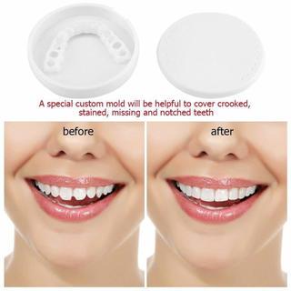 歯のカバー 入れ歯 義歯 ホワイトニング 白い歯 新品