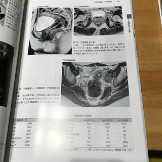 婦人科MRIアトラス(住まい/暮らし/子育て)
