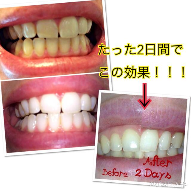 新品】海外人気♡ホワイトニング歯磨き粉の通販 by Dally's SHOP|ラクマ