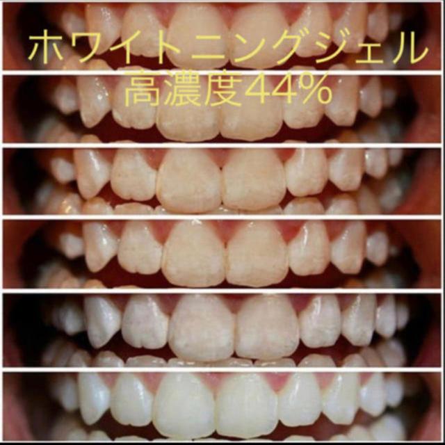 ホワイトニング ジェル 5本セット コスメ/美容のオーラルケア(歯ブラシ/デンタルフロス)の商品写真