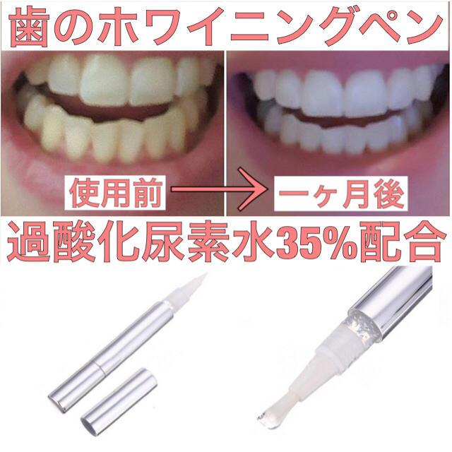 歯が真っ白! 歯のホワイトニングペンの通販 by mi-ma-ma ラクマ
