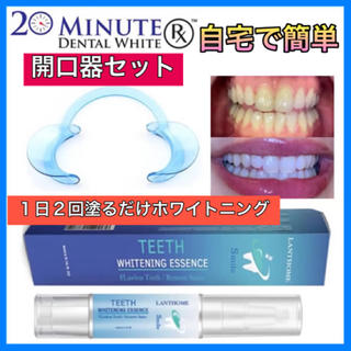 開口器セット 1日2回で綺麗な白い歯に〜  人気の歯のホワイトニングジェルペン(その他)