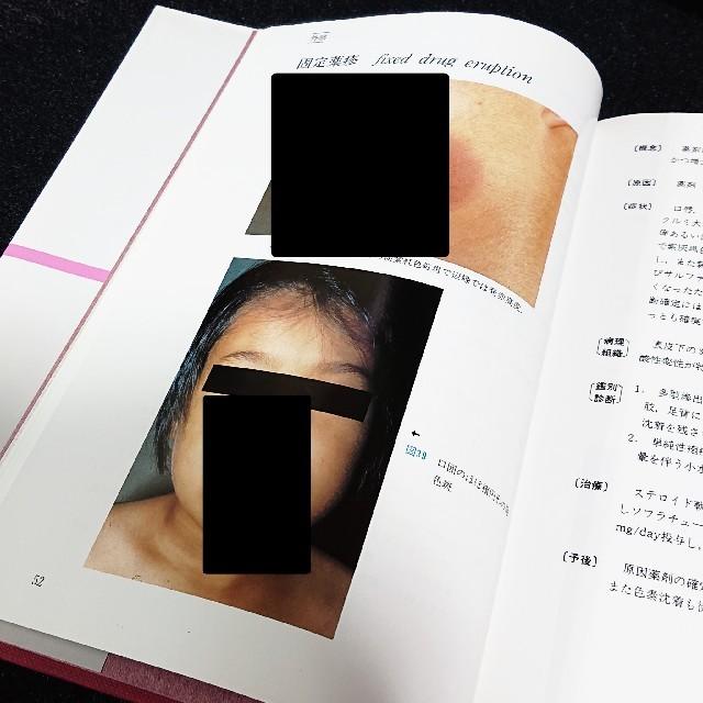 写真 女性 医学 書