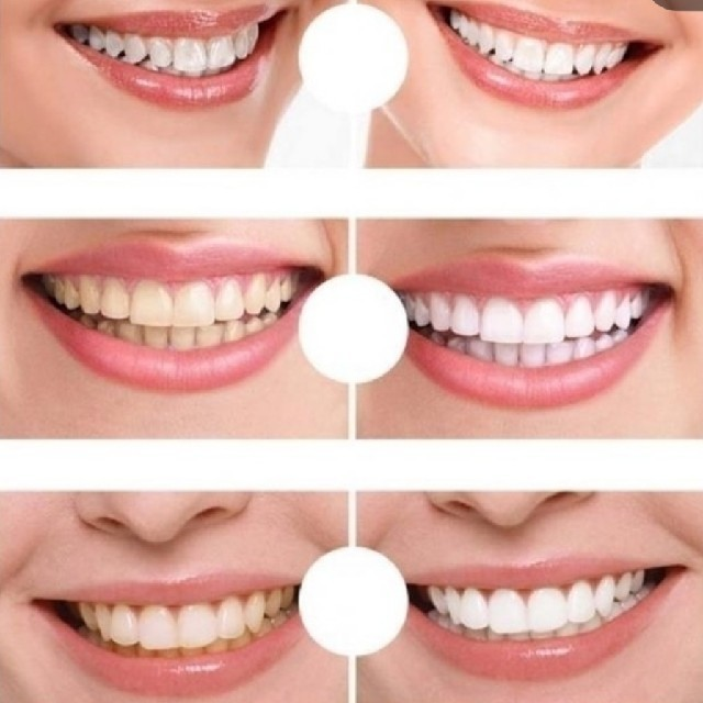 LEDライトホワイトニング+ペン型ホワイトニング セット コスメ/美容のオーラルケア(口臭防止/エチケット用品)の商品写真