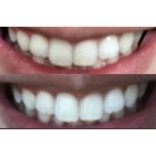 クレスト(Crest)の【残りわずか】美容大国タイ タイハーブで速攻ホワイトニング!白い歯!(歯磨き粉)
