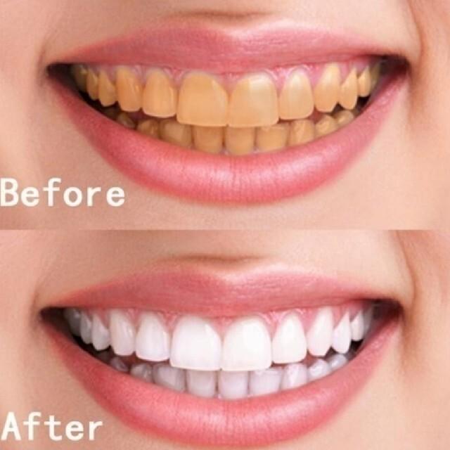 歯 ホワイトニング エッセンス コスメ/美容のオーラルケア(口臭防止/エチケット用品)の商品写真