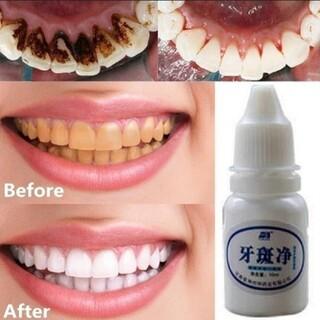 歯 ホワイトニング エッセンス