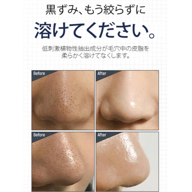 新品未開封 ワンデイズユー ノーモアブラックヘッド コスメ/美容のスキンケア/基礎化粧品(パック/フェイスマスク)の商品写真