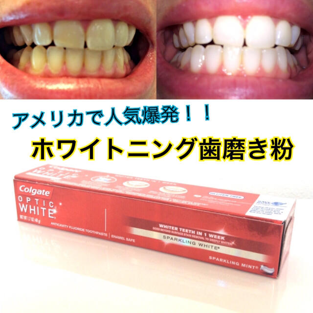 新品】輝く歯に!ホワイトニング歯磨き粉の通販 by Dally's SHOP|ラクマ